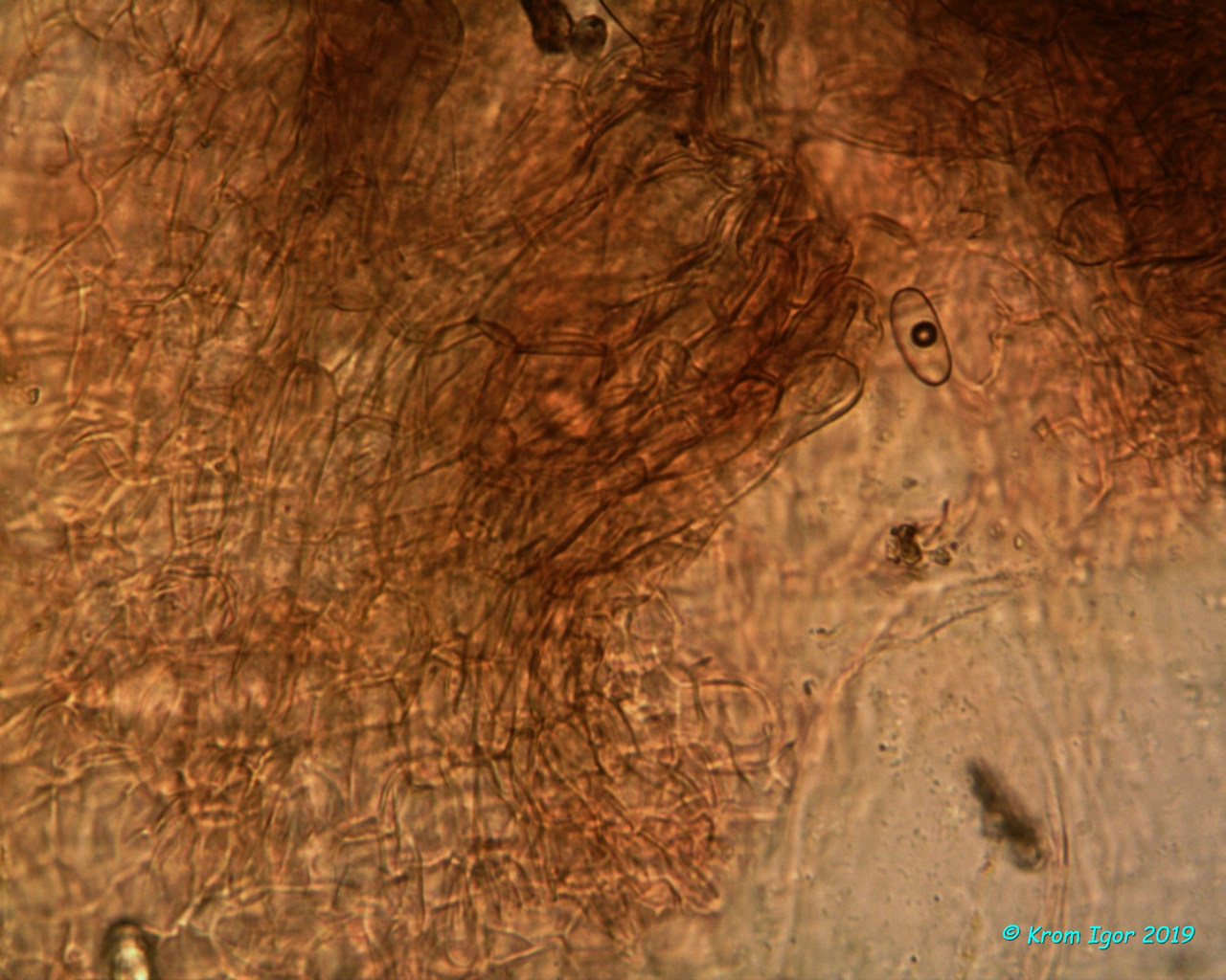 Excipulum, 400х, Congo red Автор фото: Кром Игорь