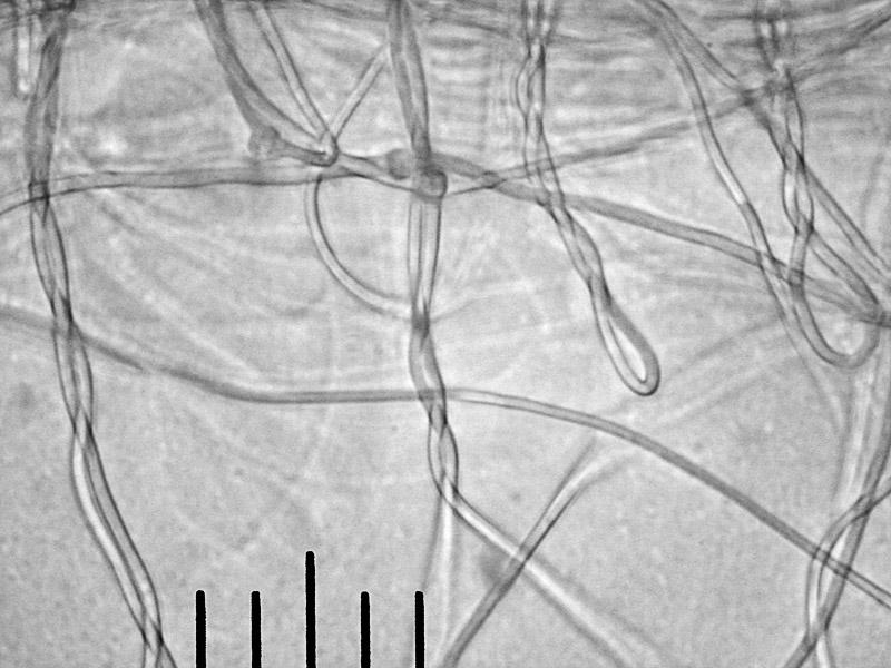 гифы клейкой мицелиальной нити, х400 Автор фото: Андрей Смирнов